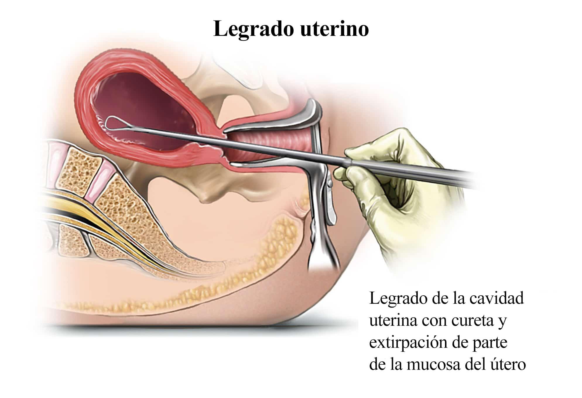 Síntomas del aborto, píldora, quirúrgico, provocado, bioquimico ...