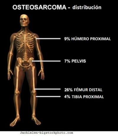 tumor óseo