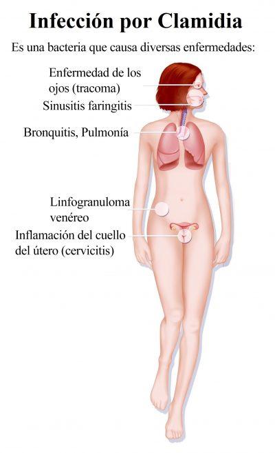 Infección por Clamidia