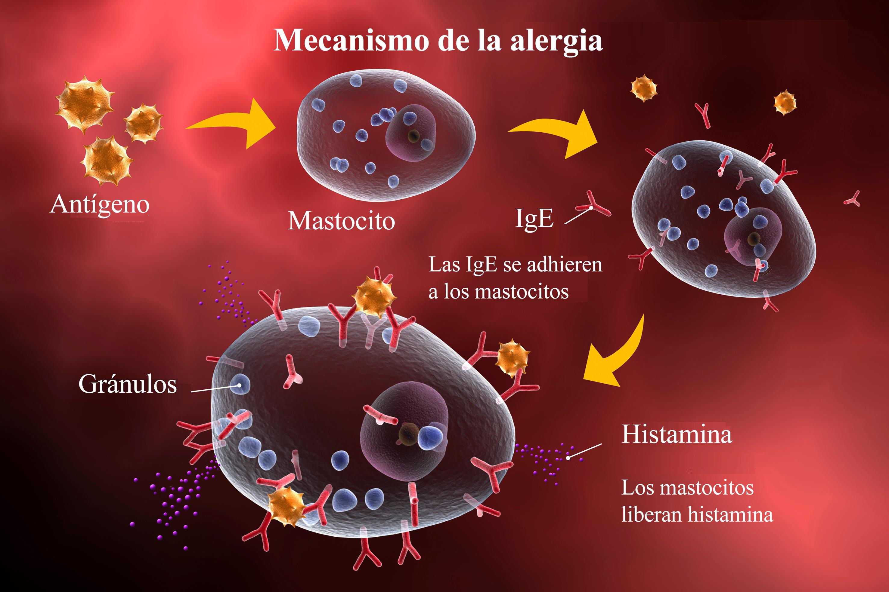 reacción alérgica, alergia, mecanismo, inflamación, ige