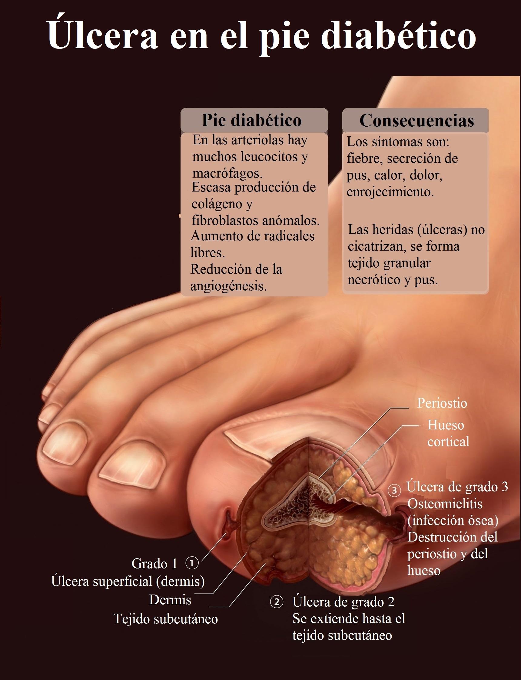 úlcera, pie diabético, sección