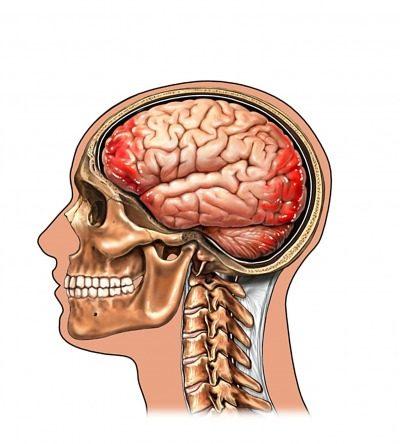 Impacto cerebro, contragolpe