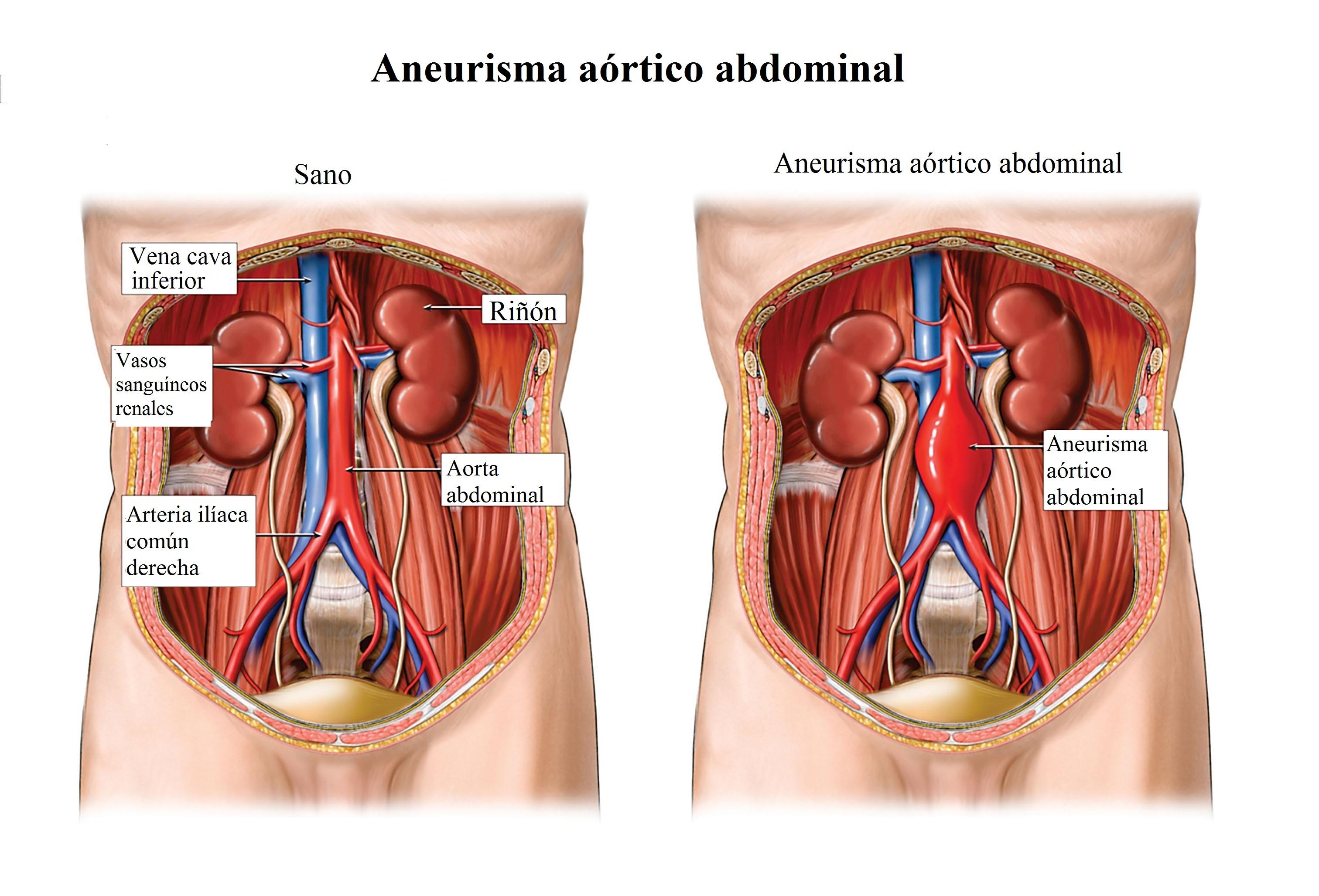 Aneurisma de aorta, abdominal, ascendente, torácica, síntomas ...