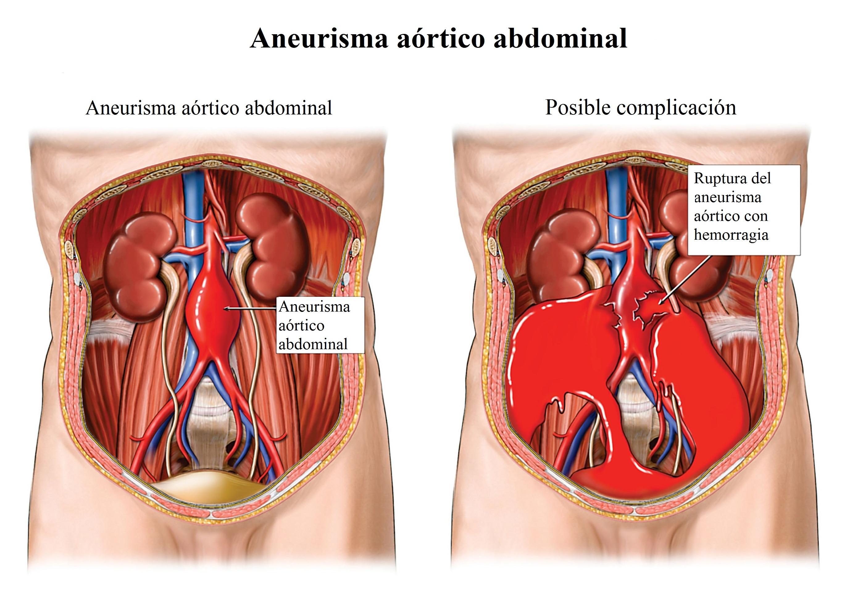 Ruptura del aneurisma, aorta, abdominal