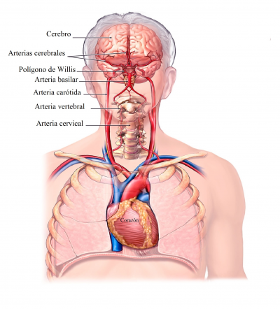 tensión baja, ictus, arterias
