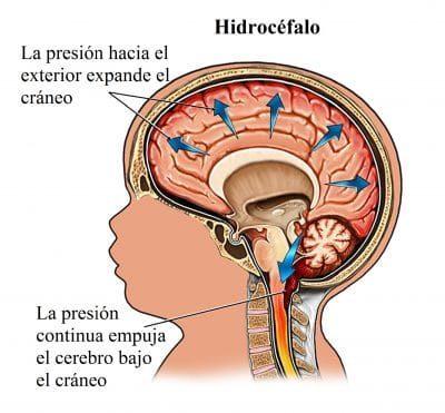 cerebro, hidrocéfalo