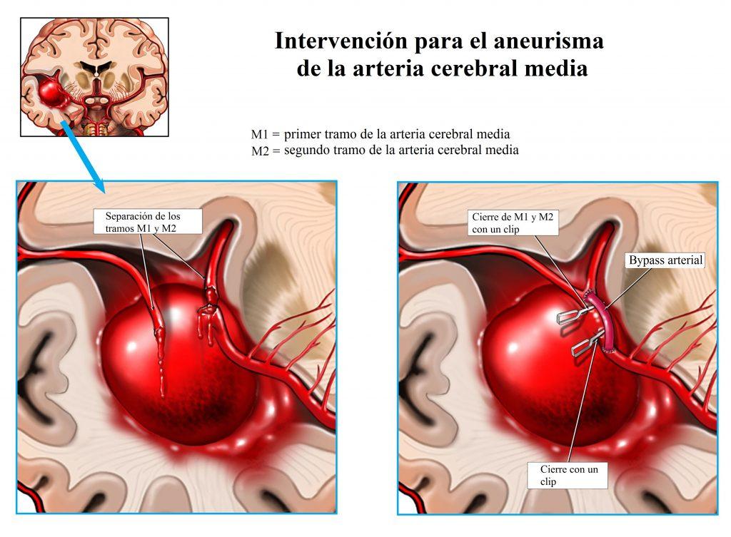 Intervención de aneurisma de la arteria