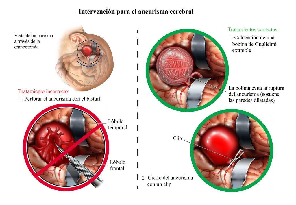 intervención para el aneurisma cerebral