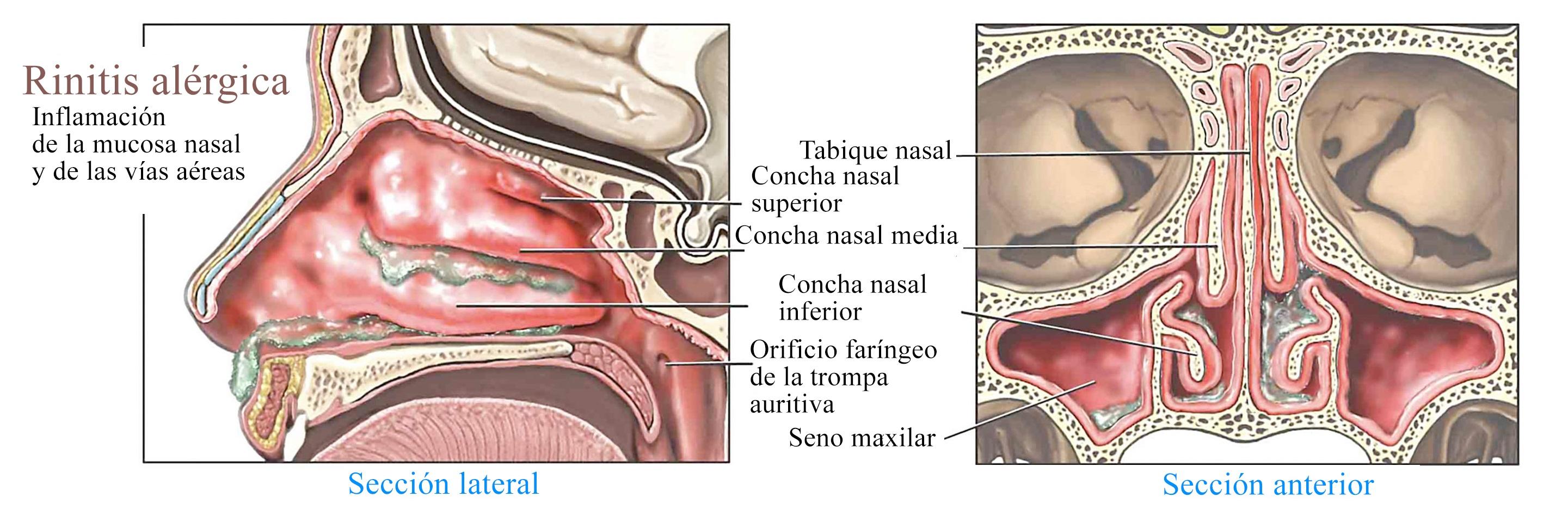 Mucosas en la nariz