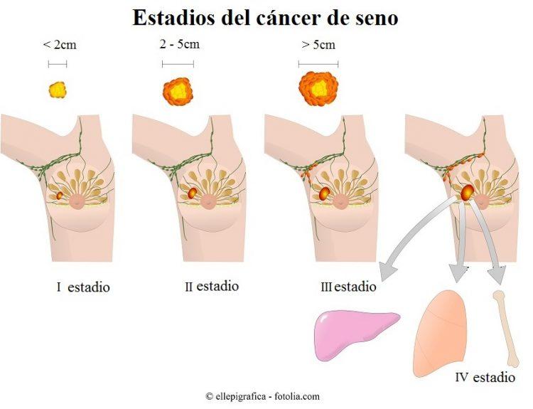 etapas, cáncer de mama