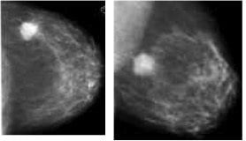 Carcinoma ductal invasivo, mamografía