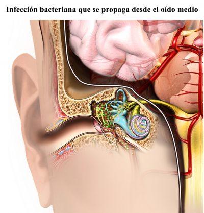 infeccion bacteriana, oído medio