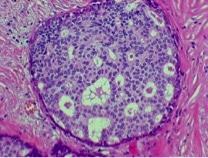 NID1C - biopsia