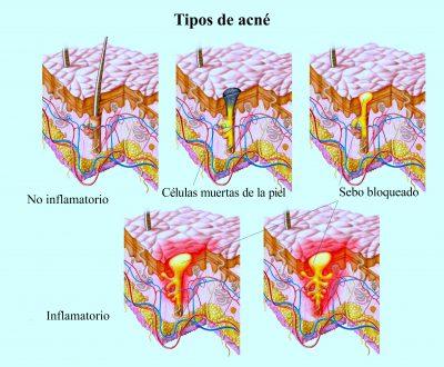 acné, inflamado, granos