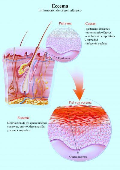 eczema, dermatitis, inflamación