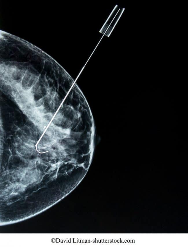 biopsia aspiración con aguja guiada para mamografía