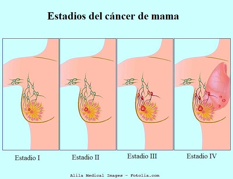 carcinoma de mama, estadios del tumor
