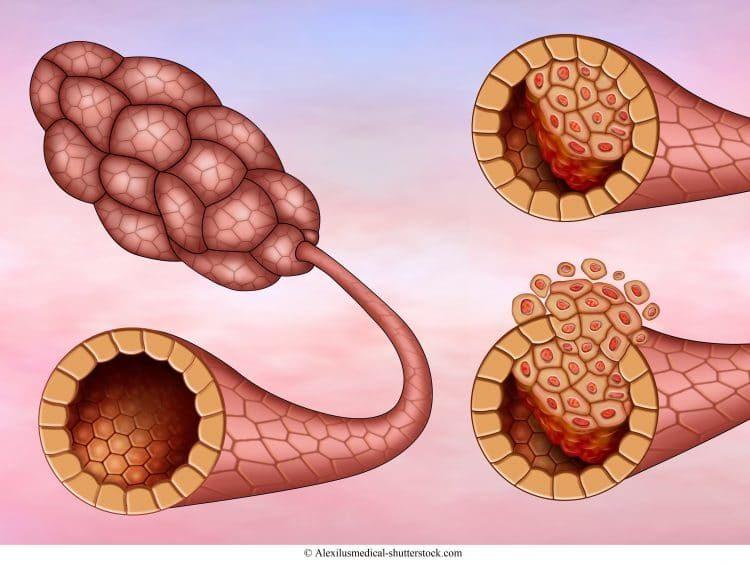 carcinoma ductal invasivo