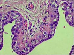 LIN2, necrosis, microcalcificaciones