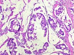 Biopsia - carcinoma mucinoso