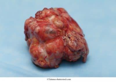 Fibroma en el seno izquierdo