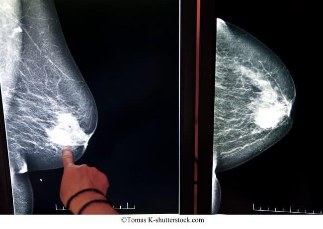 mamografía, cáncer de mama