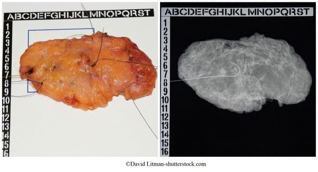 nodulectomía, 5mm, masa