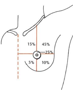 incidencia del cáncer de mama, cuadrantes del seno