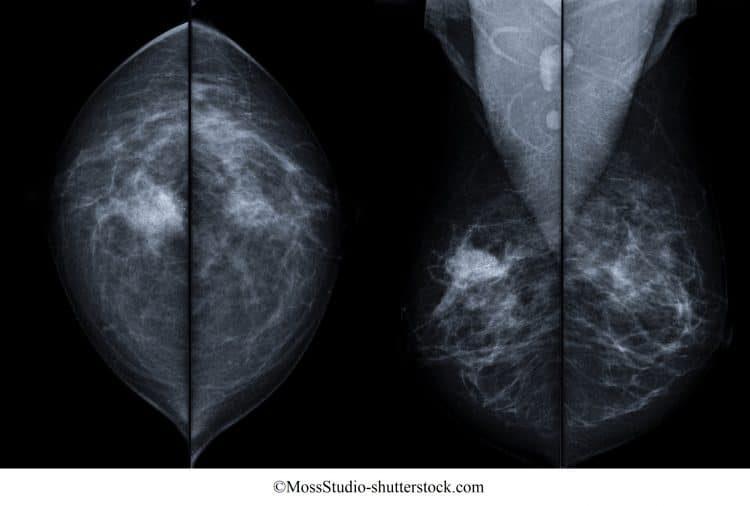 tumor, seno, derecho, mamografía