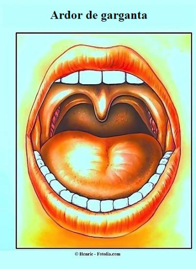 Ardor de garganta