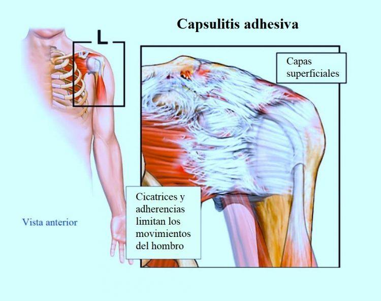 Excelente Hombro Músculos Y Tendones Diagrama Composición - Anatomía ...