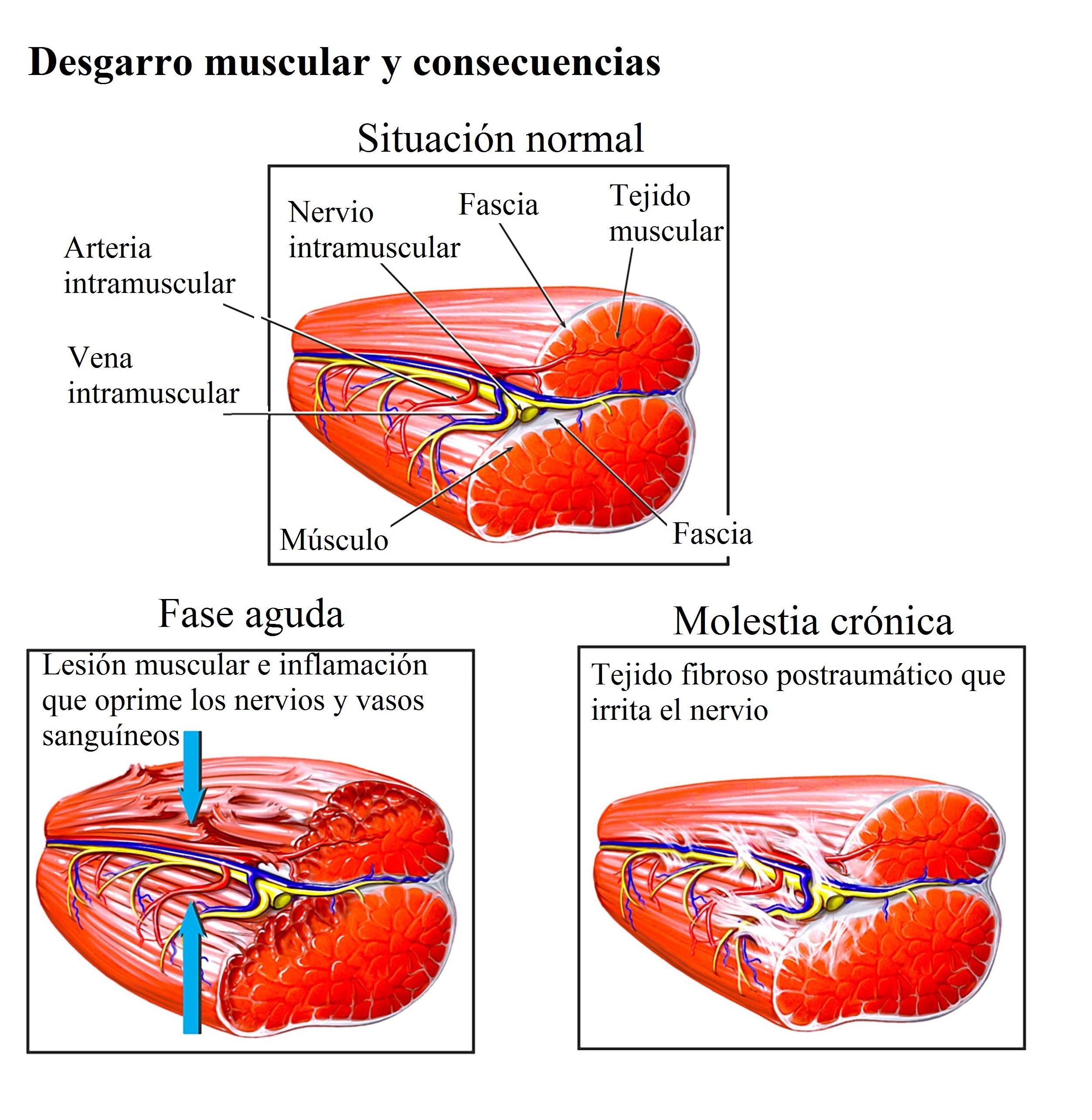dolor ardiente en la parte superior del muslo