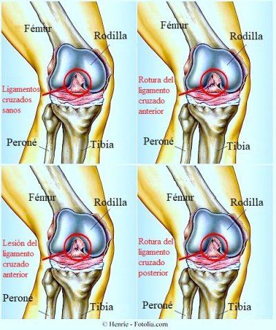 dolor de rodilla, ligamentos