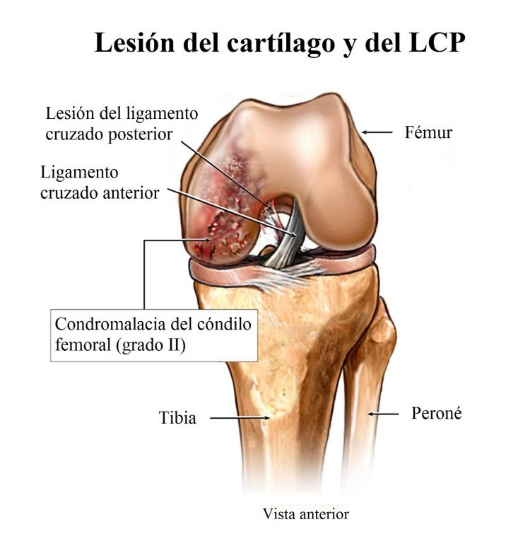 lesión del ligamento cruzado posterior