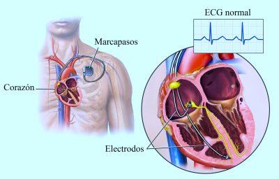 marcapasos, electrodod, estimulador eléctrico, arritmia, bradicardia, corazón