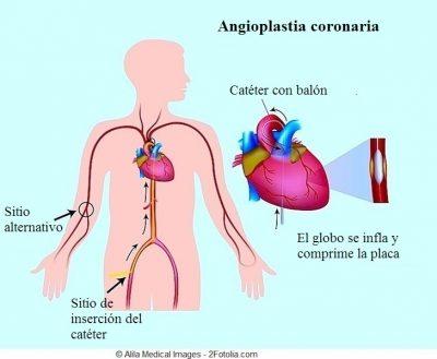angioplastia coronaria