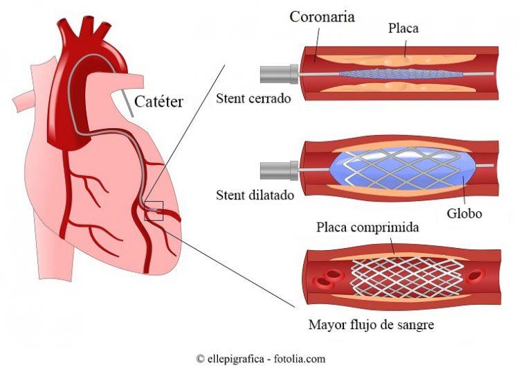 angioplastia, stent, coronaria