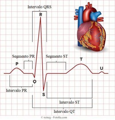 electrocardiograma, ECG