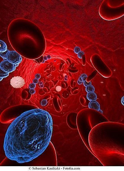 bacterias, pericarditis, infección