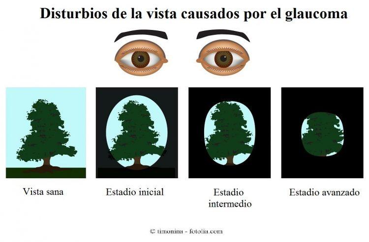 glaucoma, pérdida de la visión periférica