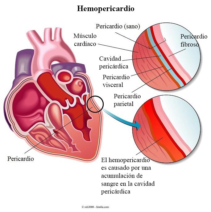 hemopericardio