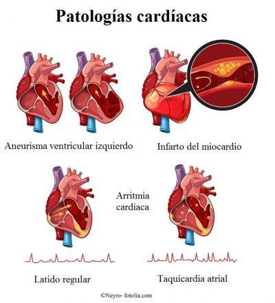 infarto, aneurisma, arritmia
