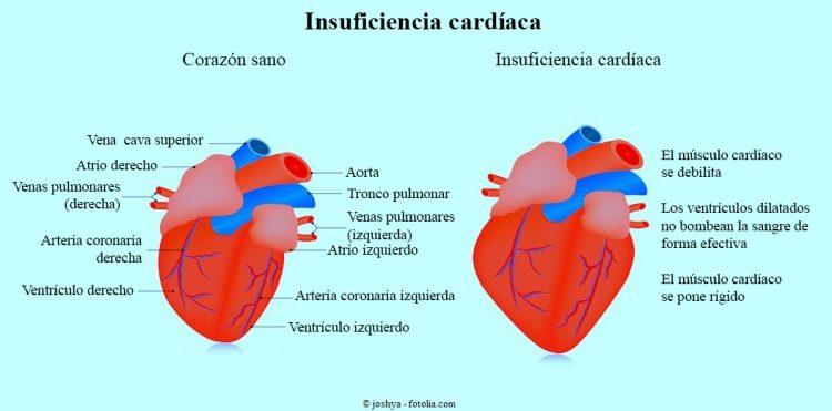 Insuficiencia cardíaca, derecha, izquierda, medicamentos, síntomas y ...