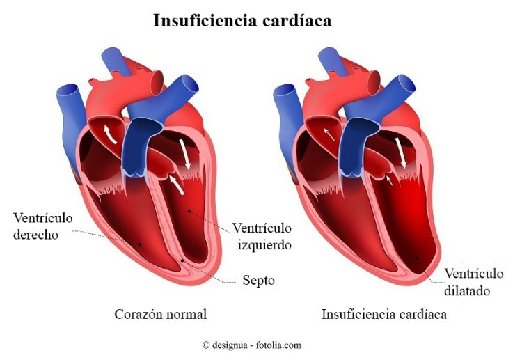 insuficiencia cardíaca, ventrículo dilatado