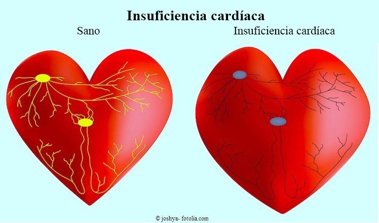 insuficiencia cardíaca, corazón