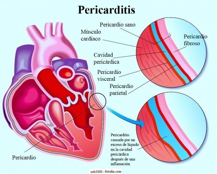 pericarditis