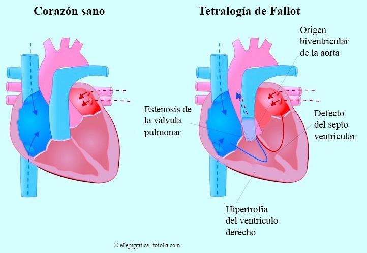 Tetralogía-Fallot
