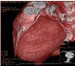 angiografía por tac