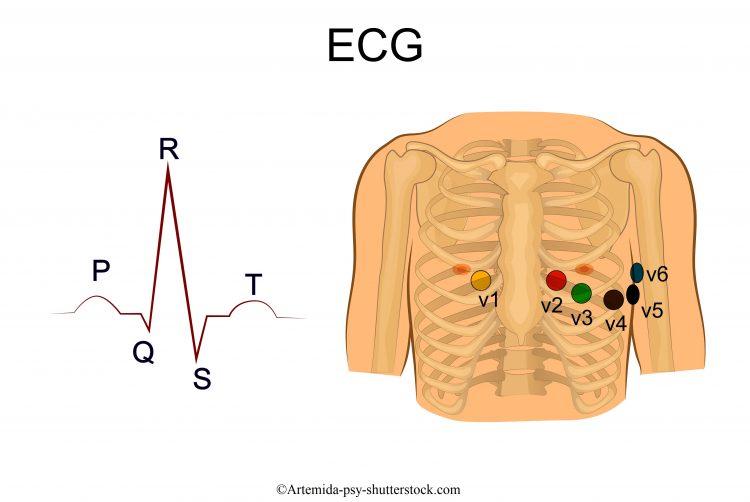 ecg-V1-V2-V3-V4-V5-V6