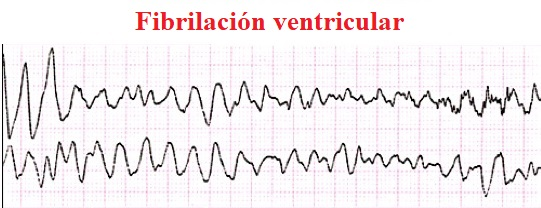fibrilación ventricular, ECG